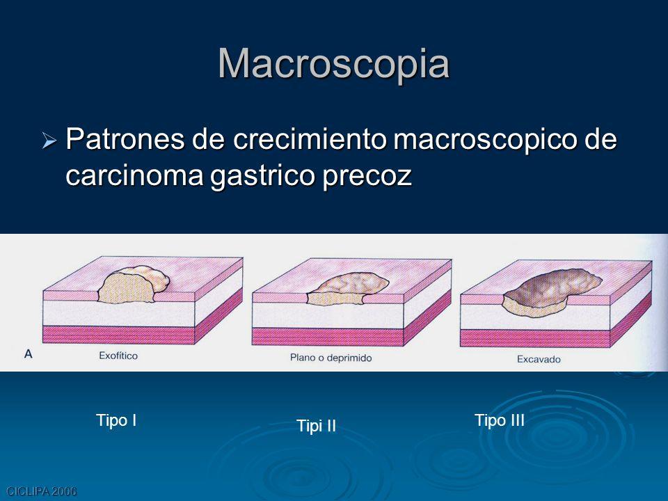 Macroscopia Patrones de crecimiento macroscopico de carcinoma gastrico precoz. Tipo I. Tipo III. Tipi II.