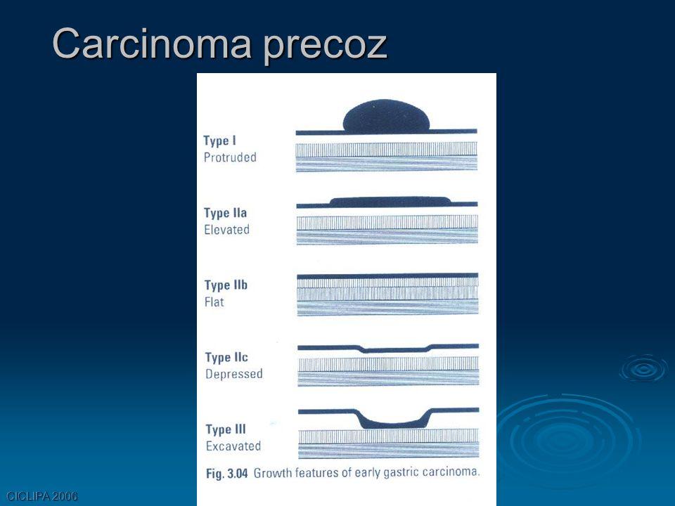 Carcinoma precoz CICLIPA 2006