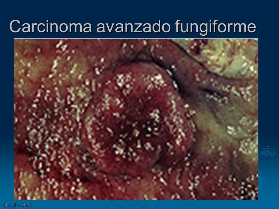 Carcinoma avanzado fungiforme