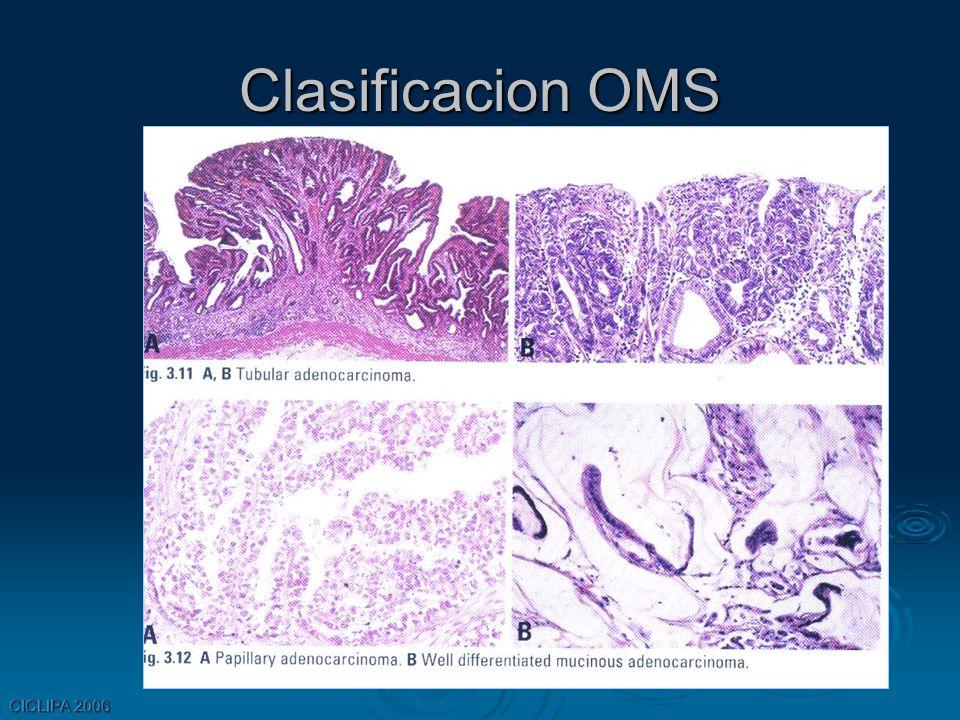 Clasificacion OMS CICLIPA 2006