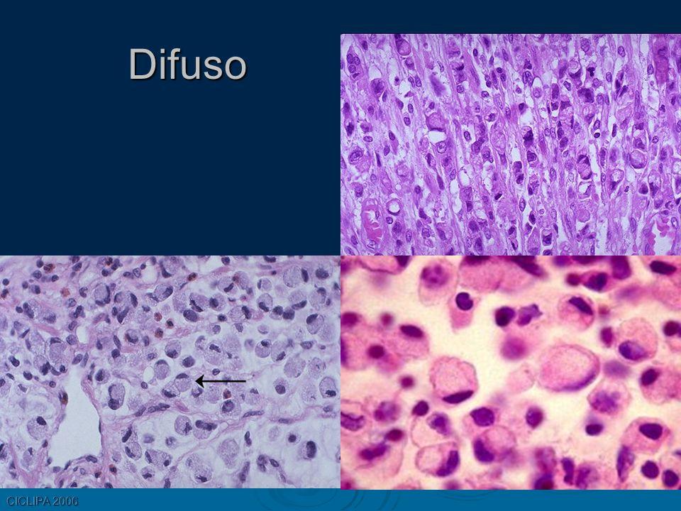 Difuso CICLIPA 2006