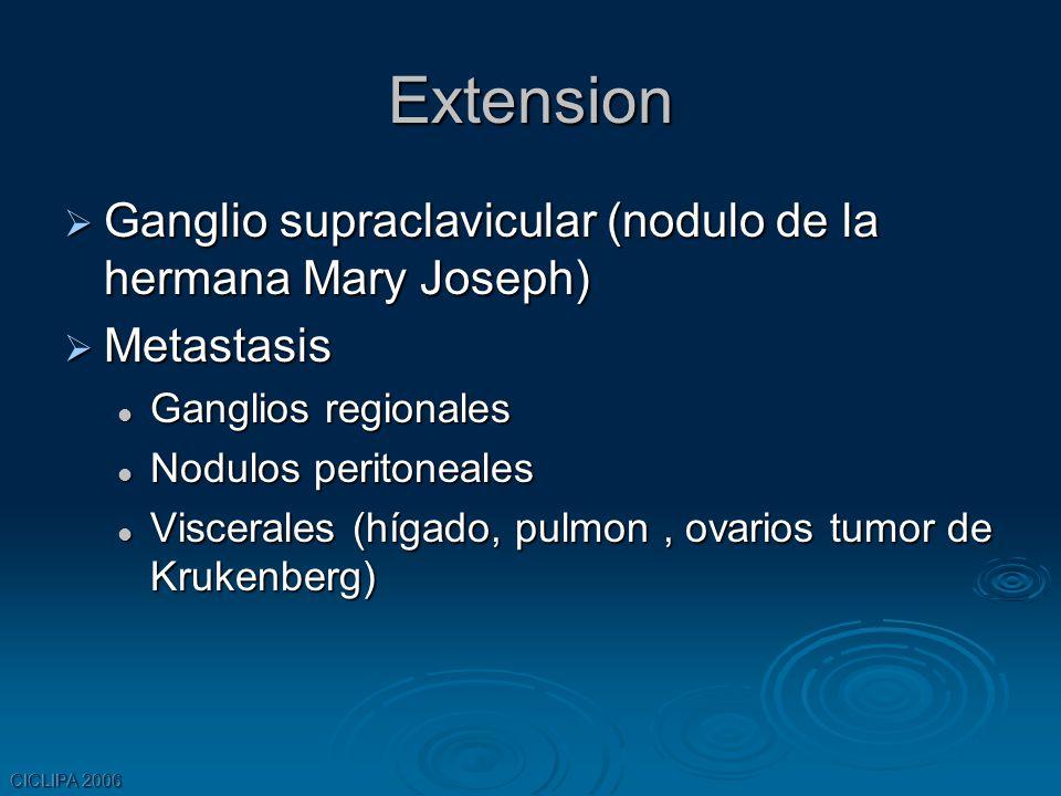 Extension Ganglio supraclavicular (nodulo de la hermana Mary Joseph)