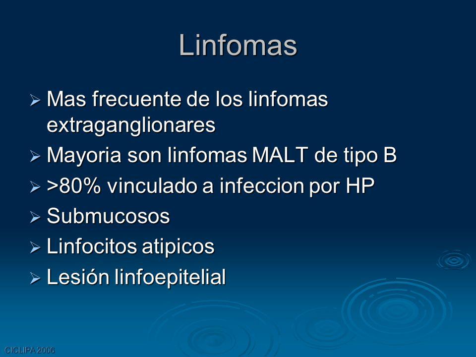 Linfomas Mas frecuente de los linfomas extraganglionares