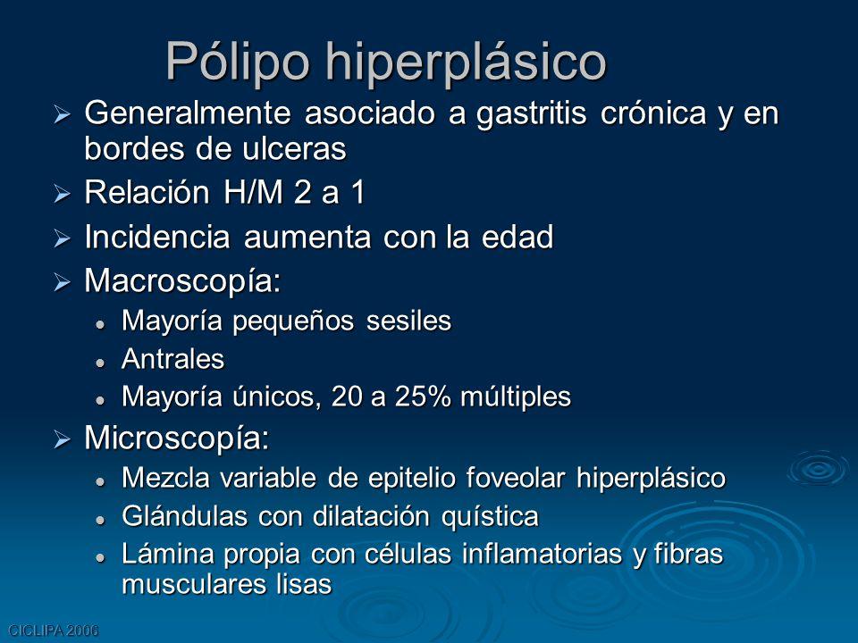 Pólipo hiperplásico Generalmente asociado a gastritis crónica y en bordes de ulceras. Relación H/M 2 a 1.