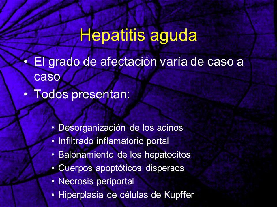 Hepatitis aguda El grado de afectación varía de caso a caso
