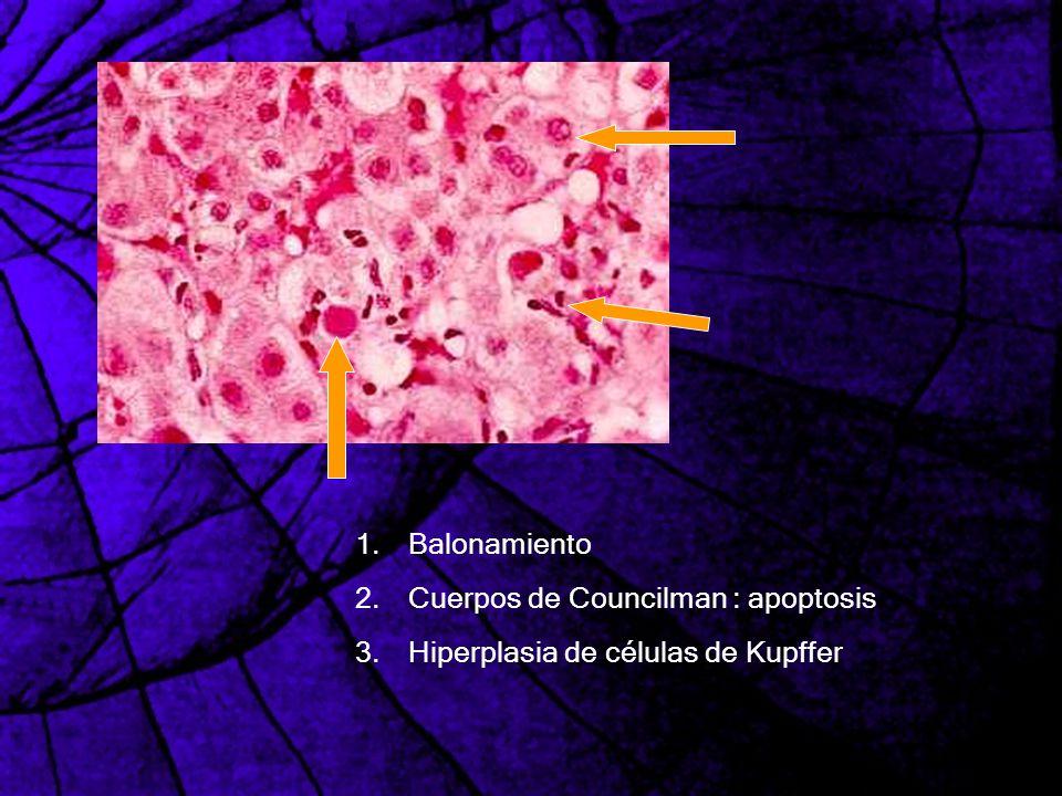 Balonamiento Cuerpos de Councilman : apoptosis Hiperplasia de células de Kupffer
