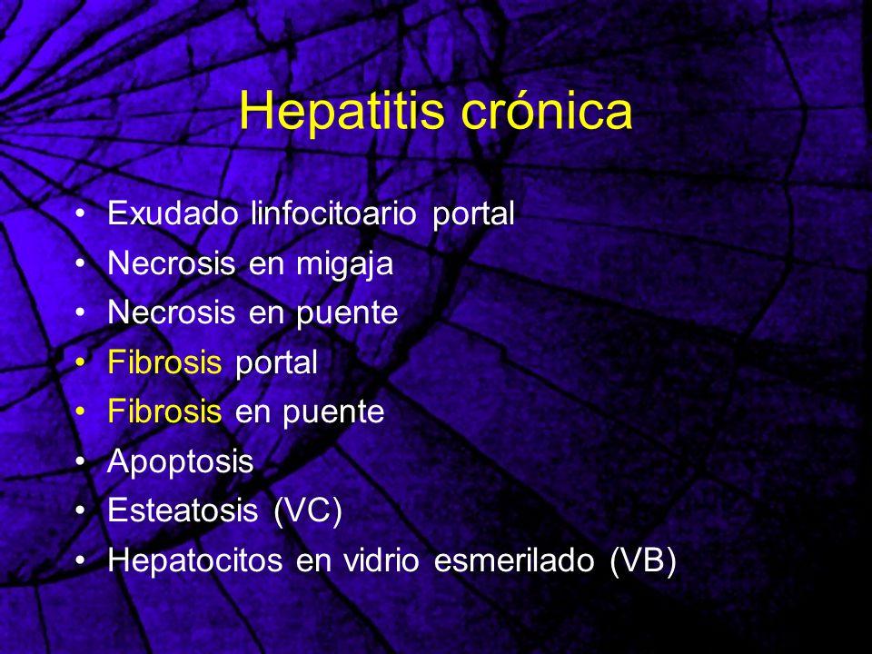 Hepatitis crónica Exudado linfocitoario portal Necrosis en migaja