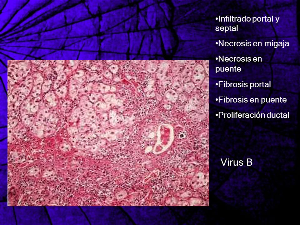 Virus B Infiltrado portal y septal Necrosis en migaja
