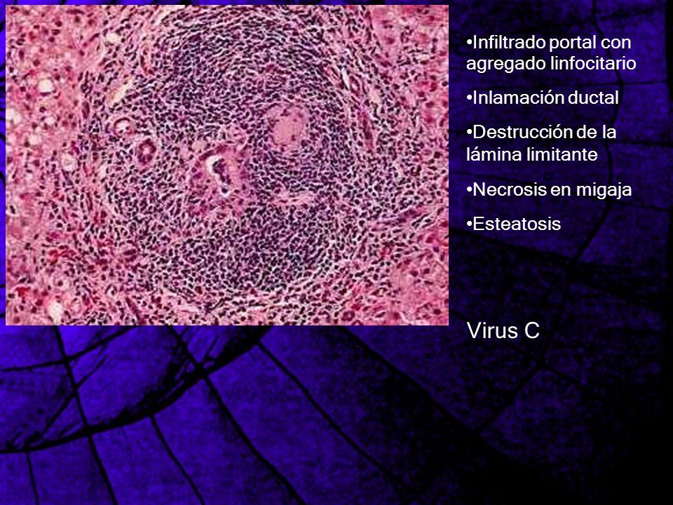 Virus C Infiltrado portal con agregado linfocitario Inlamación ductal