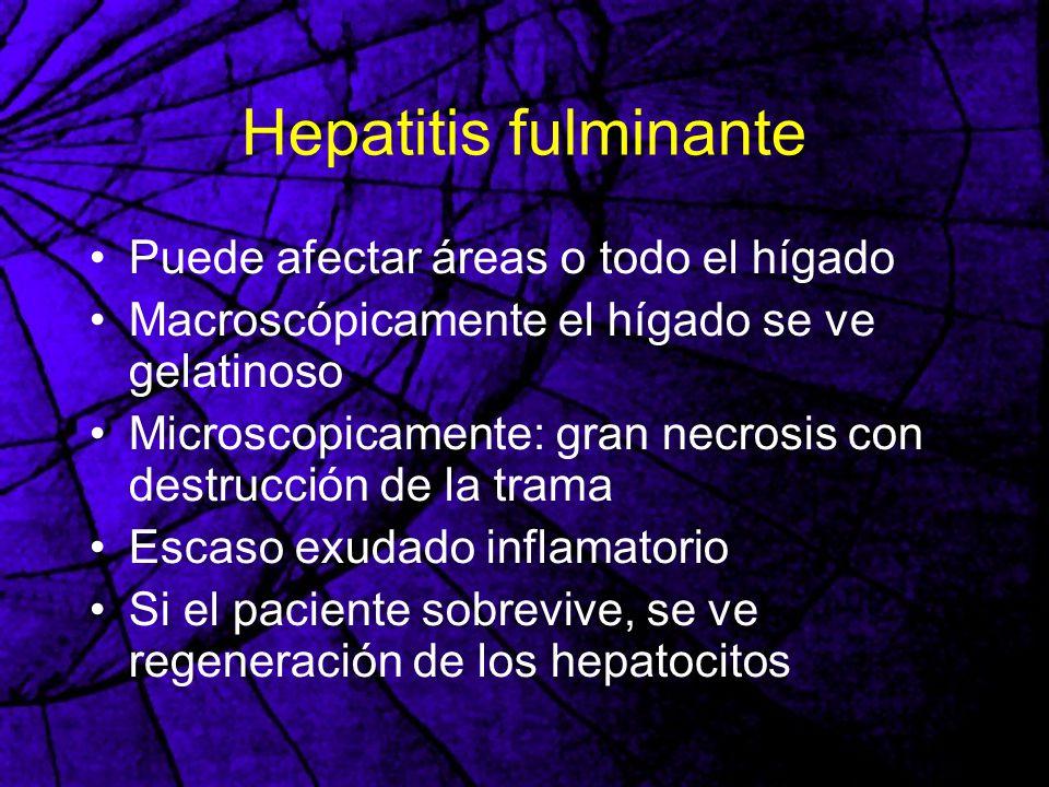 Hepatitis fulminante Puede afectar áreas o todo el hígado