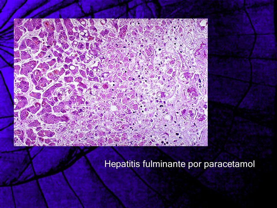 Hepatitis fulminante por paracetamol