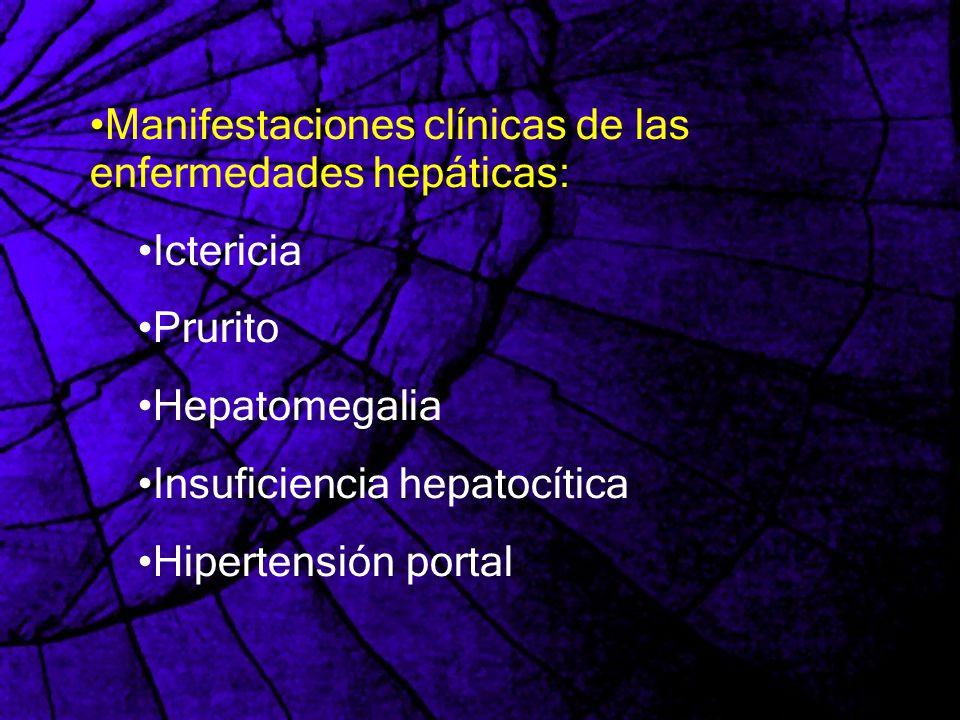 Manifestaciones clínicas de las enfermedades hepáticas: