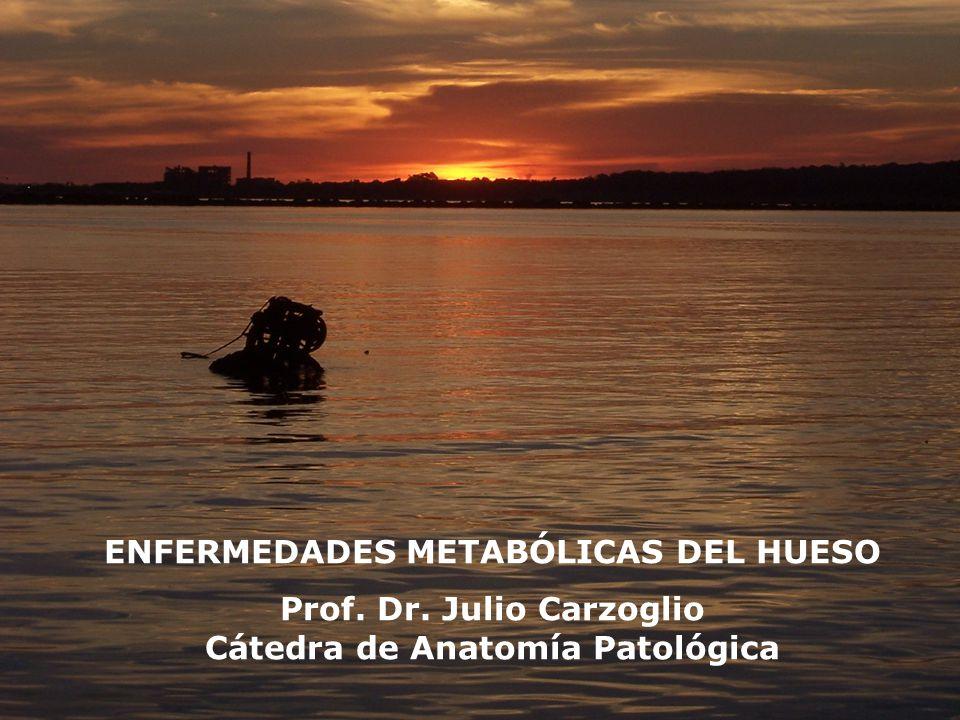 ENFERMEDADES METABÓLICAS DEL HUESO