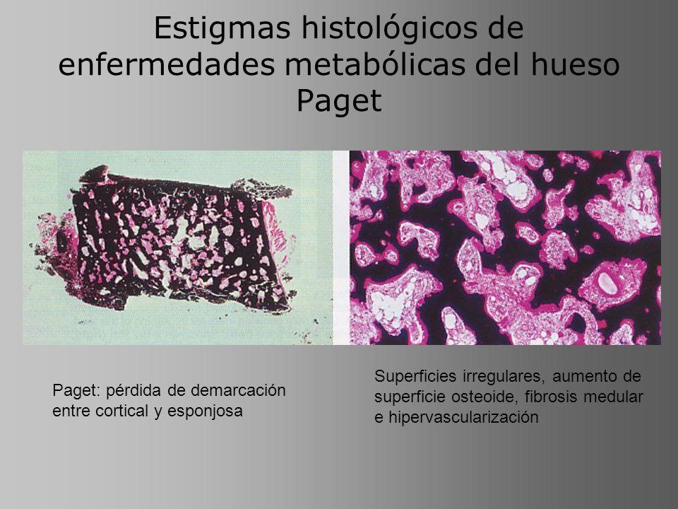 Estigmas histológicos de enfermedades metabólicas del hueso Paget