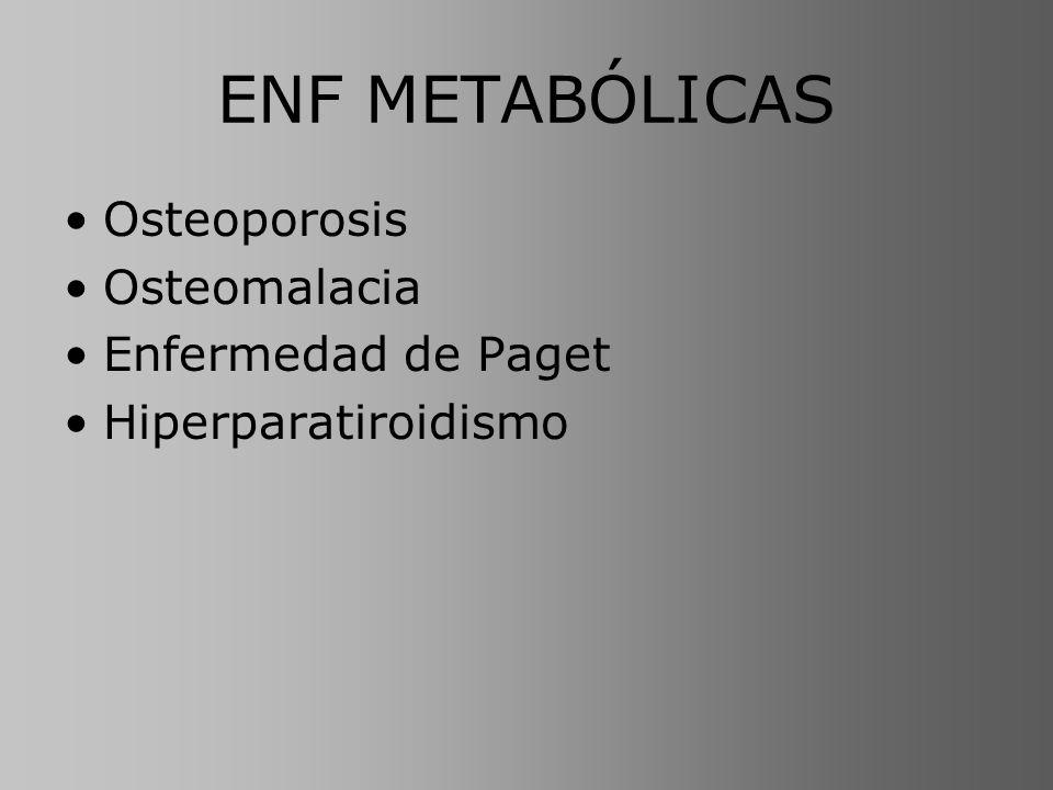 ENF METABÓLICAS Osteoporosis Osteomalacia Enfermedad de Paget