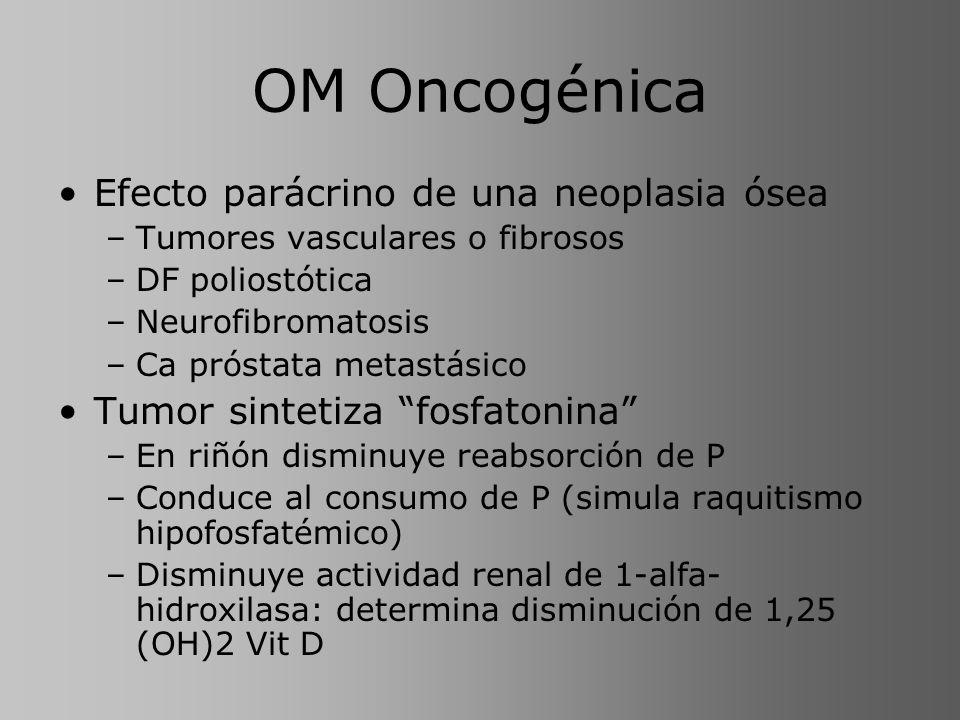 OM Oncogénica Efecto parácrino de una neoplasia ósea