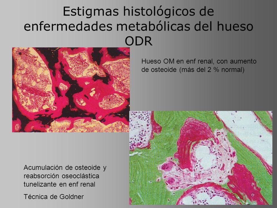 Estigmas histológicos de enfermedades metabólicas del hueso ODR