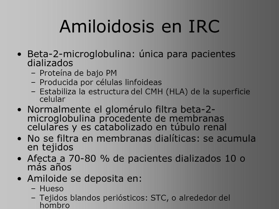Amiloidosis en IRC Beta-2-microglobulina: única para pacientes dializados. Proteína de bajo PM. Producida por células linfoideas.