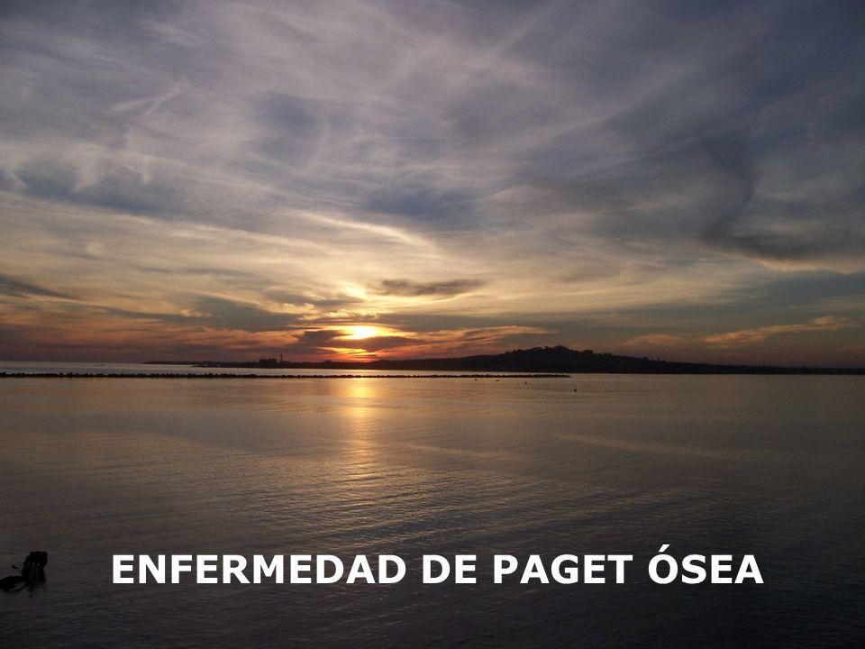ENFERMEDAD DE PAGET ÓSEA