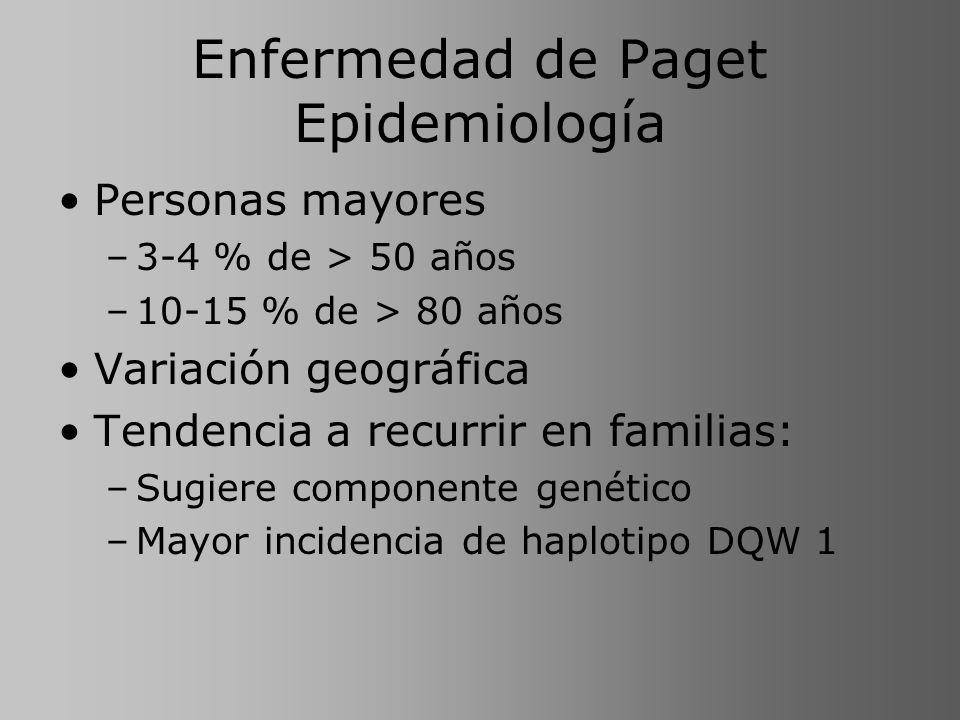Enfermedad de Paget Epidemiología