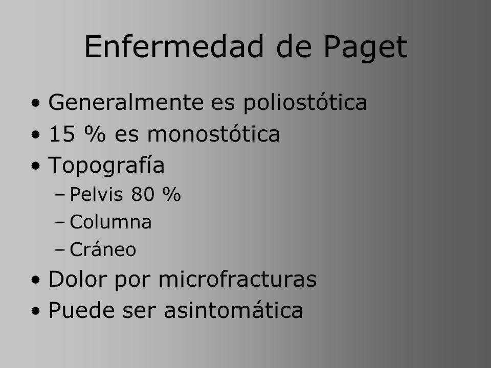 Enfermedad de Paget Generalmente es poliostótica 15 % es monostótica