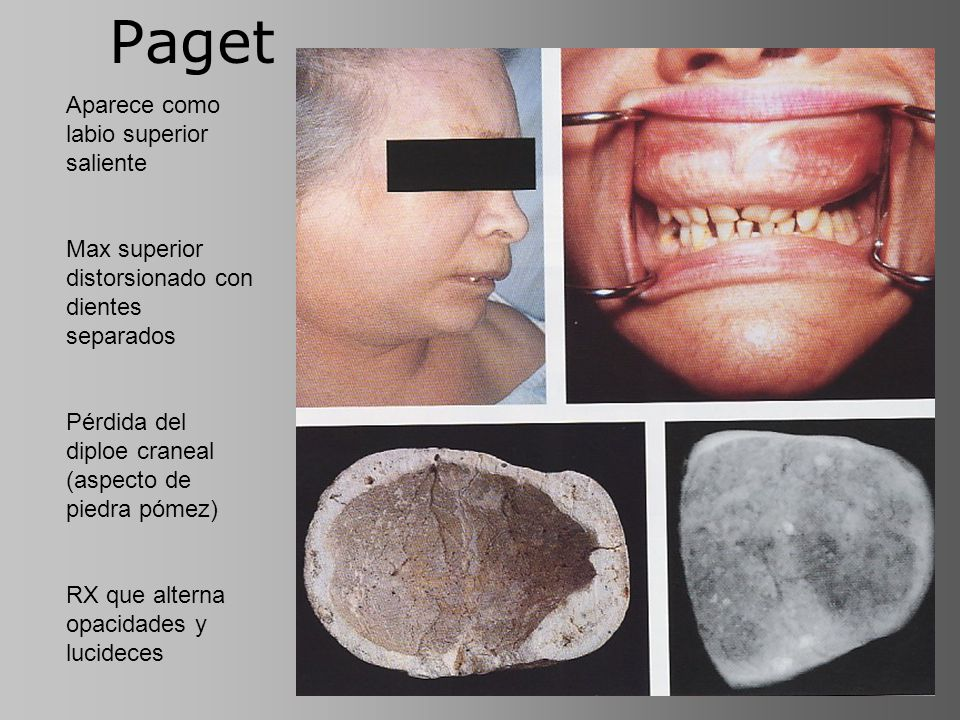 Paget Aparece como labio superior saliente