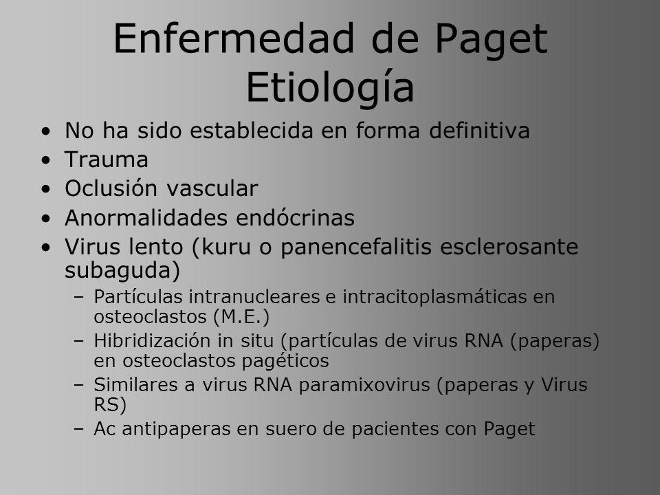 Enfermedad de Paget Etiología