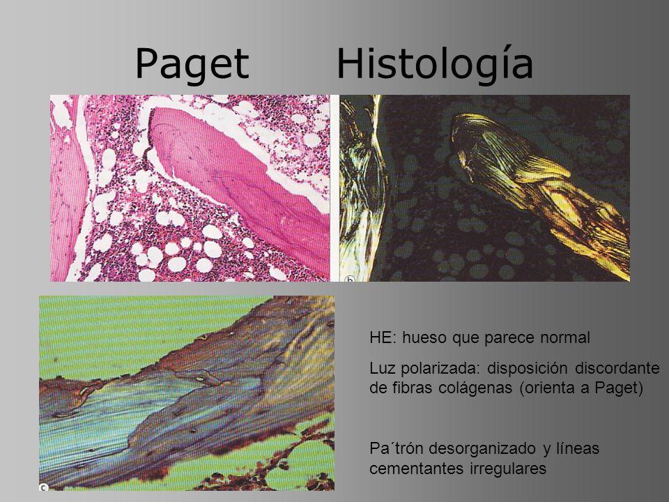 Paget Histología HE: hueso que parece normal