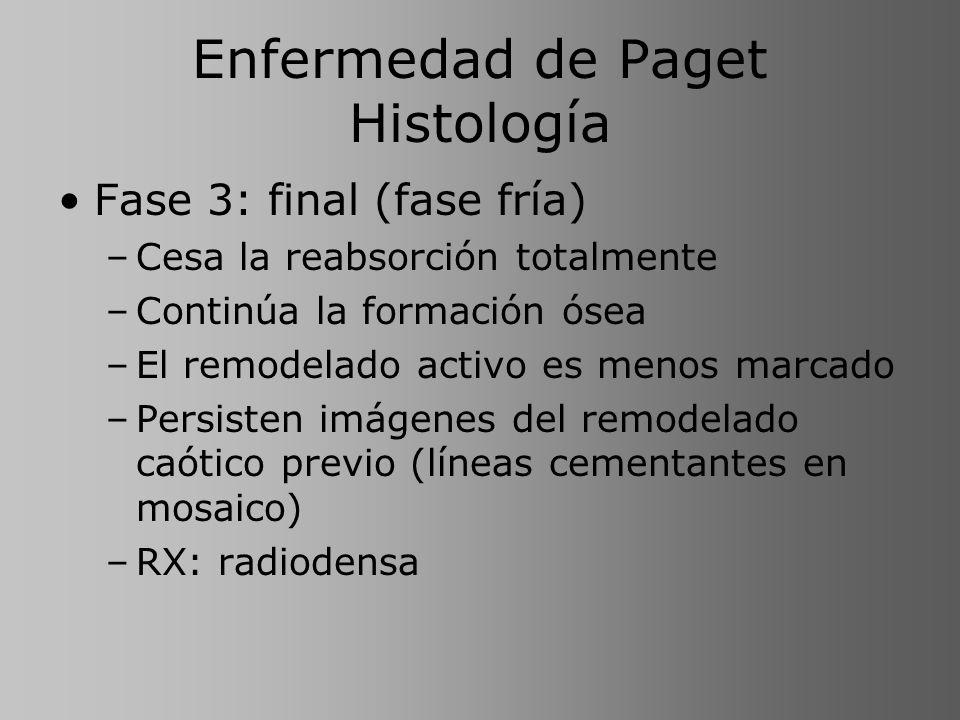 Enfermedad de Paget Histología