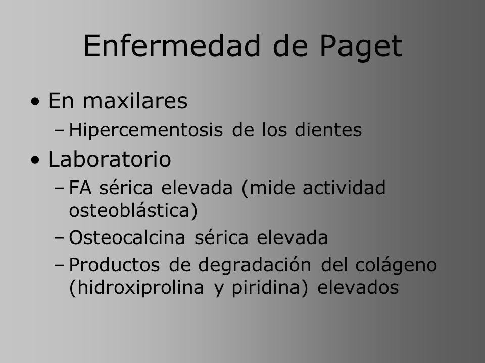 Enfermedad de Paget En maxilares Laboratorio