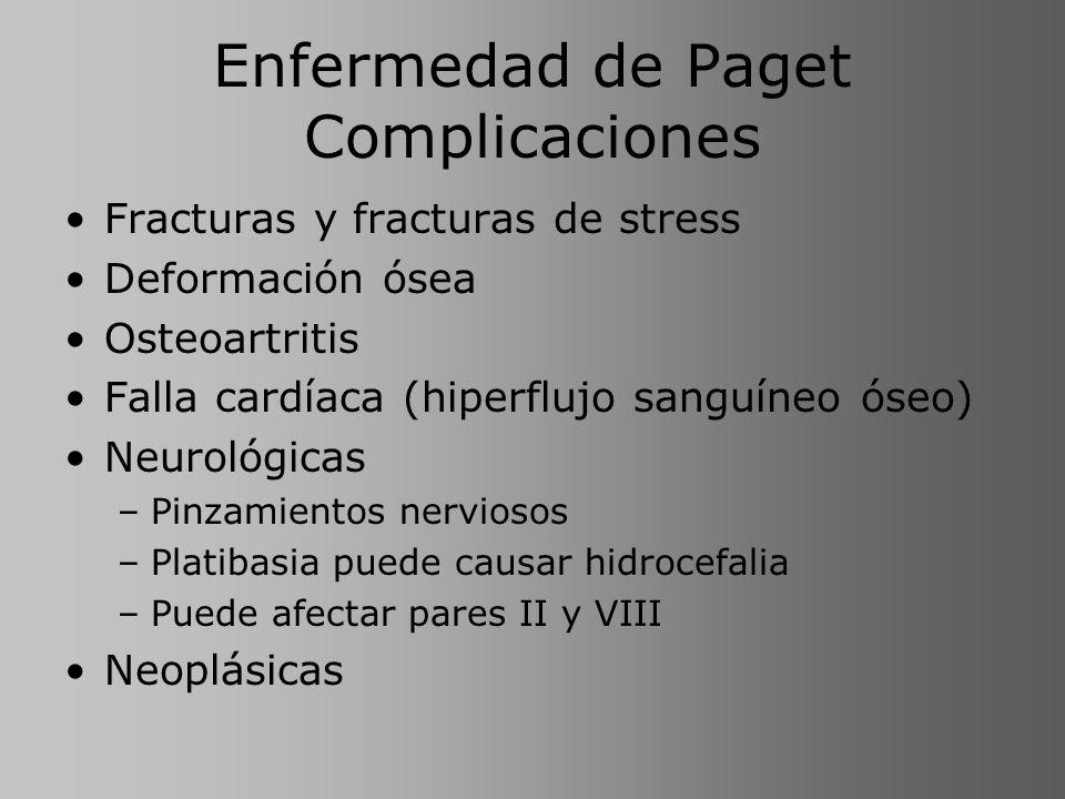 Enfermedad de Paget Complicaciones