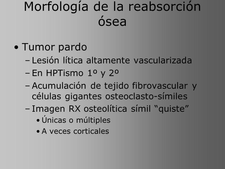 Morfología de la reabsorción ósea