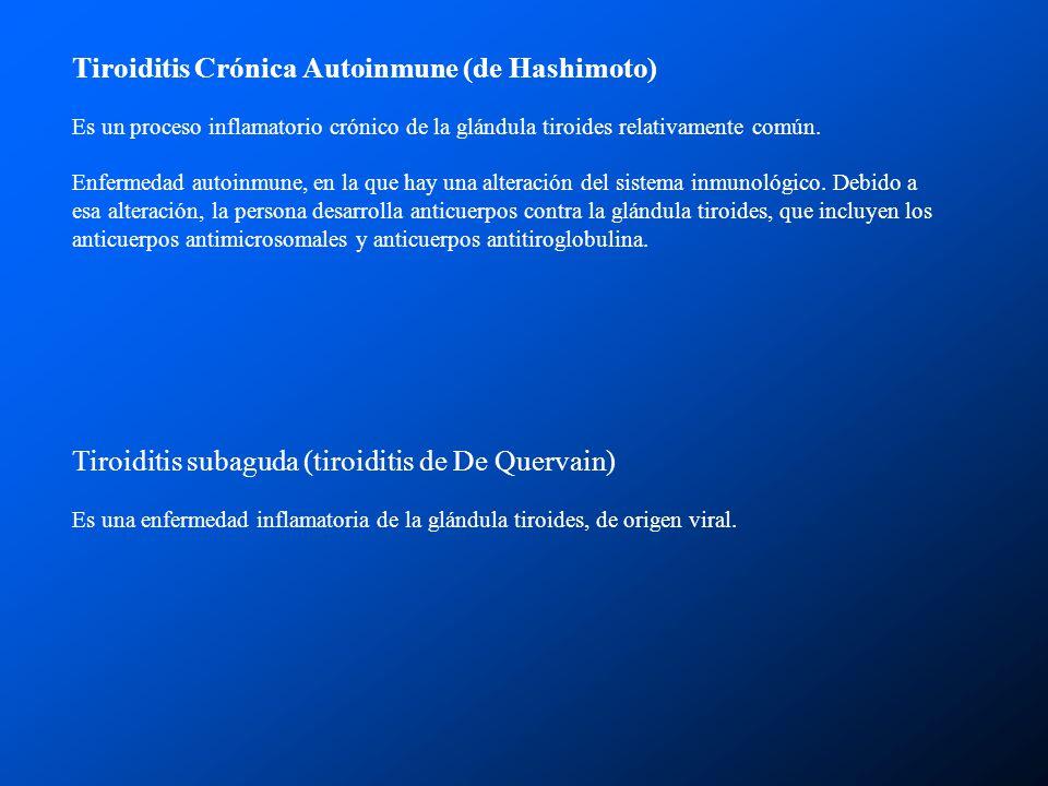 Tiroiditis Crónica Autoinmune (de Hashimoto)