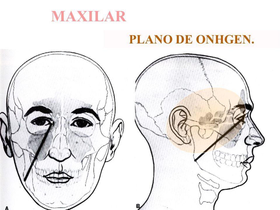 MAXILAR PLANO DE ONHGEN.