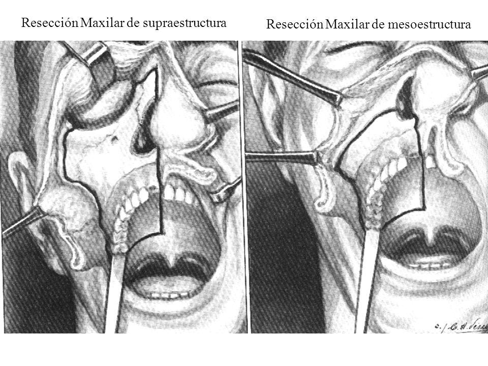 Resección Maxilar de supraestructura