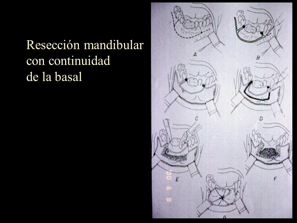 Resección mandibular con continuidad de la basal