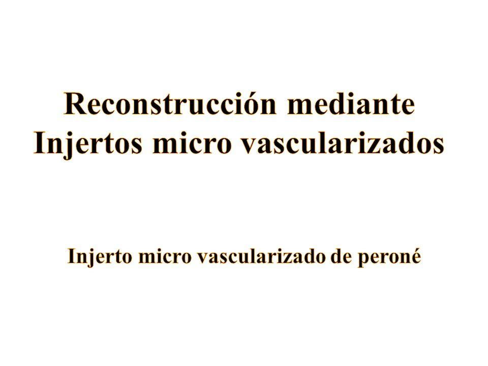 Reconstrucción mediante Injertos micro vascularizados