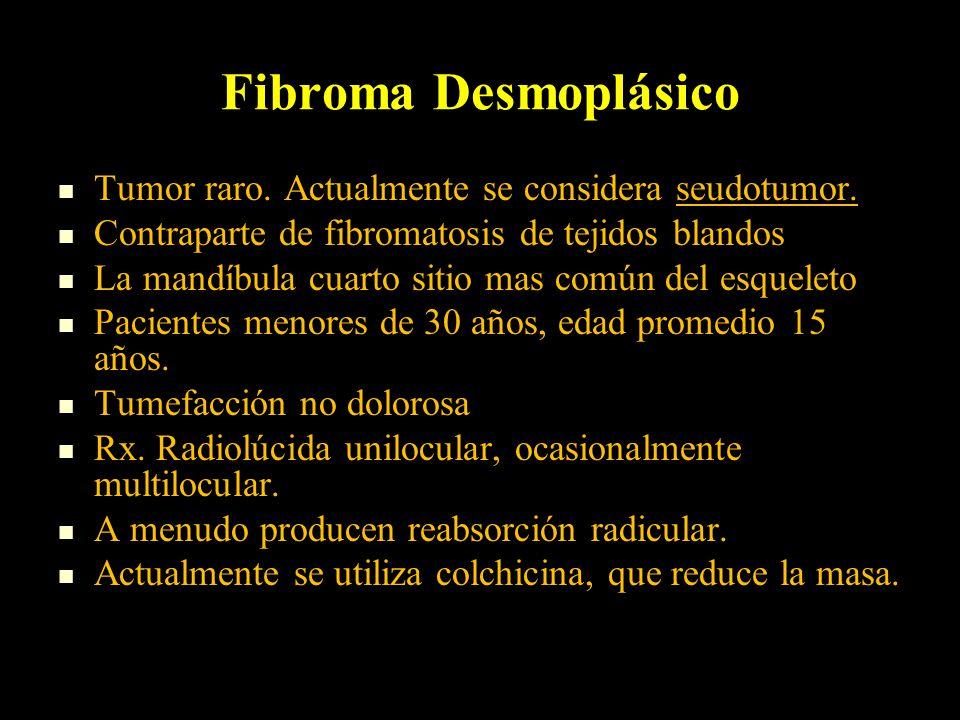 Fibroma Desmoplásico Tumor raro. Actualmente se considera seudotumor.