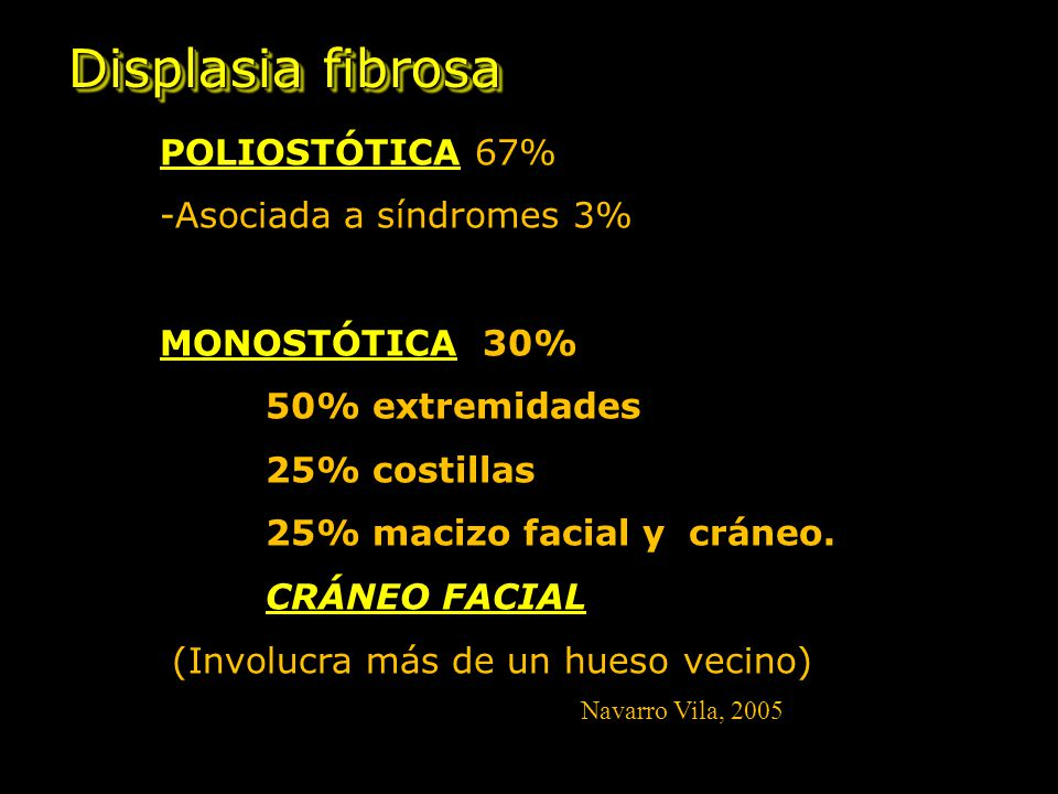 Displasia fibrosa POLIOSTÓTICA 67% -Asociada a síndromes 3%