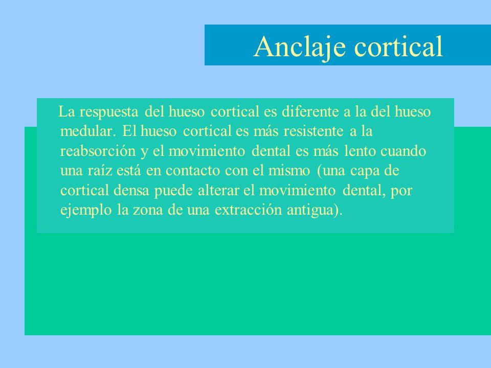 Anclaje cortical