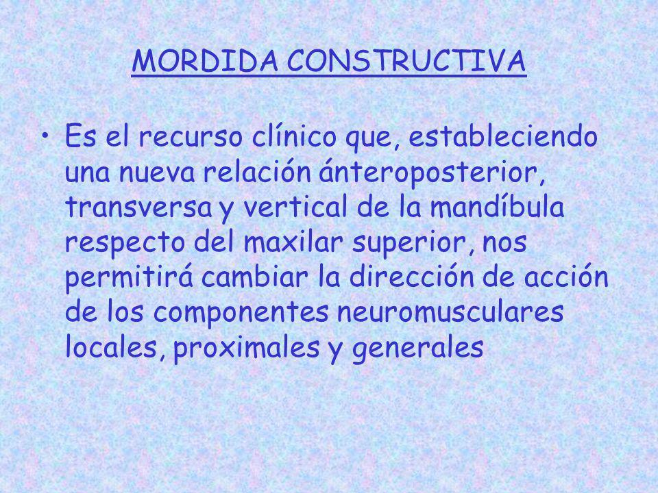 MORDIDA CONSTRUCTIVA