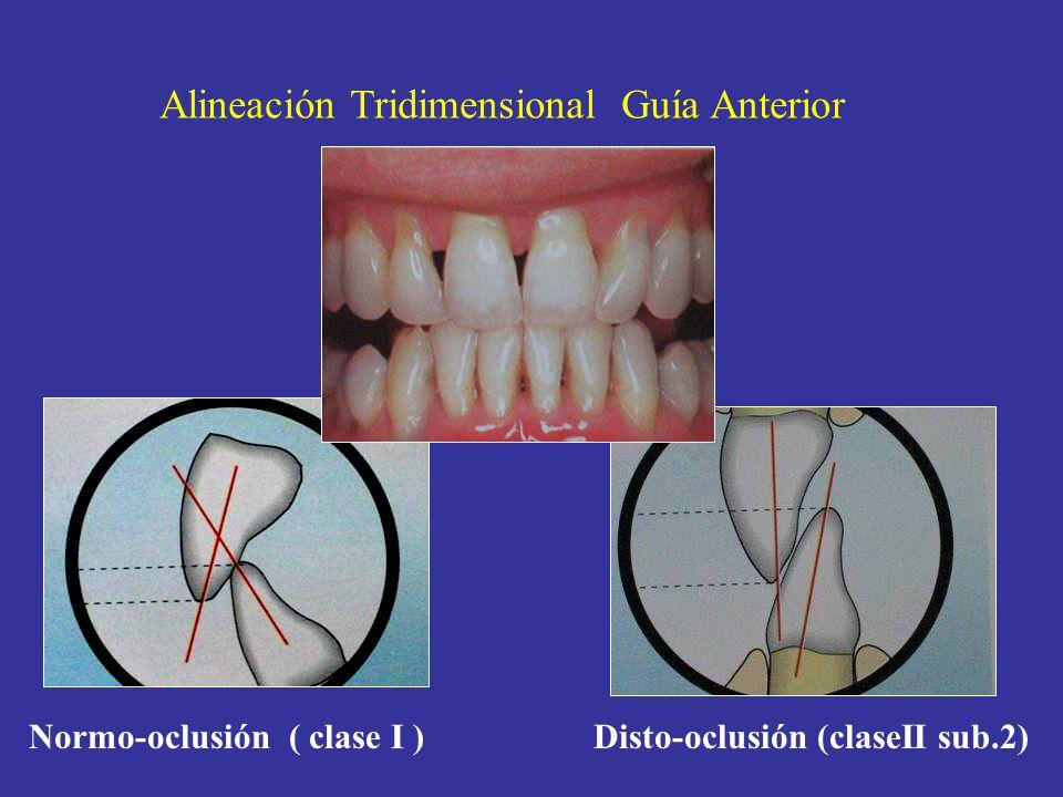 Alineación Tridimensional Guía Anterior