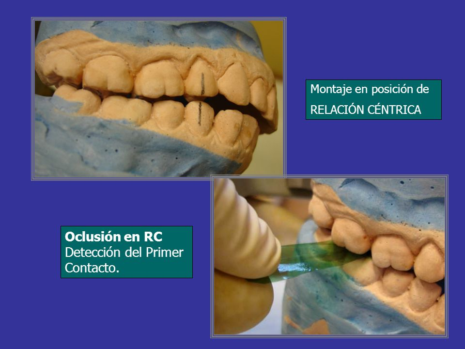 Oclusión en RC Detección del Primer Contacto.