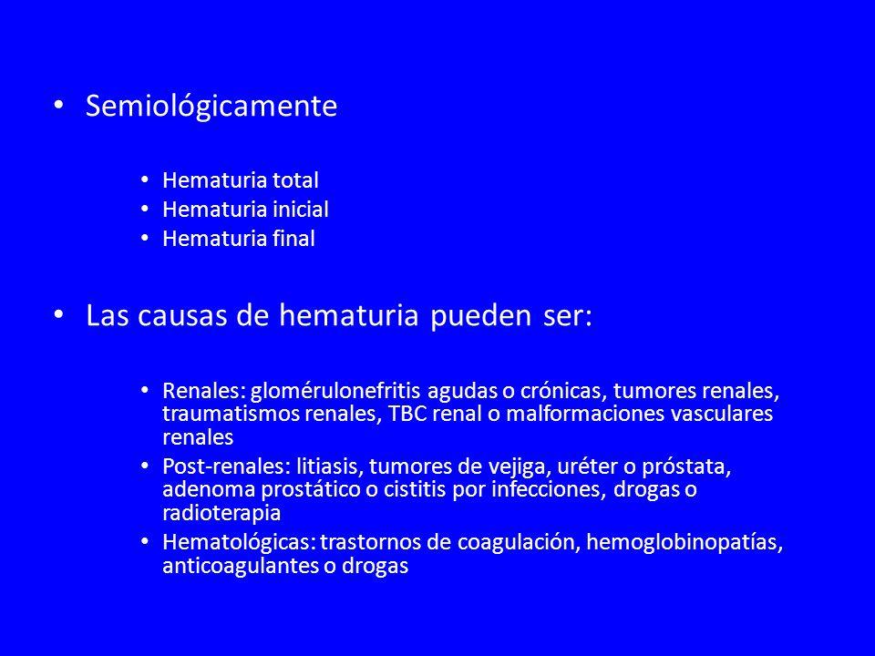 Las causas de hematuria pueden ser: