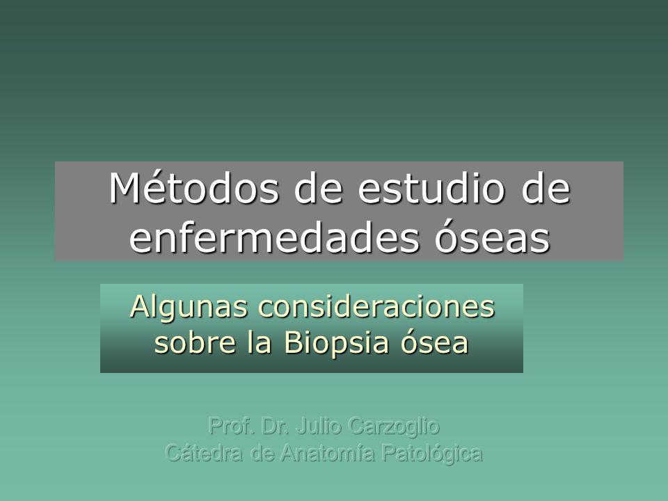 Métodos de estudio de enfermedades óseas