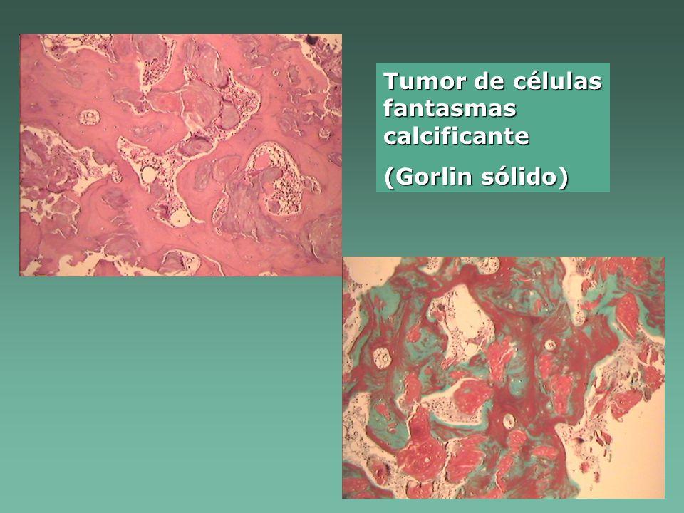 Tumor de células fantasmas calcificante