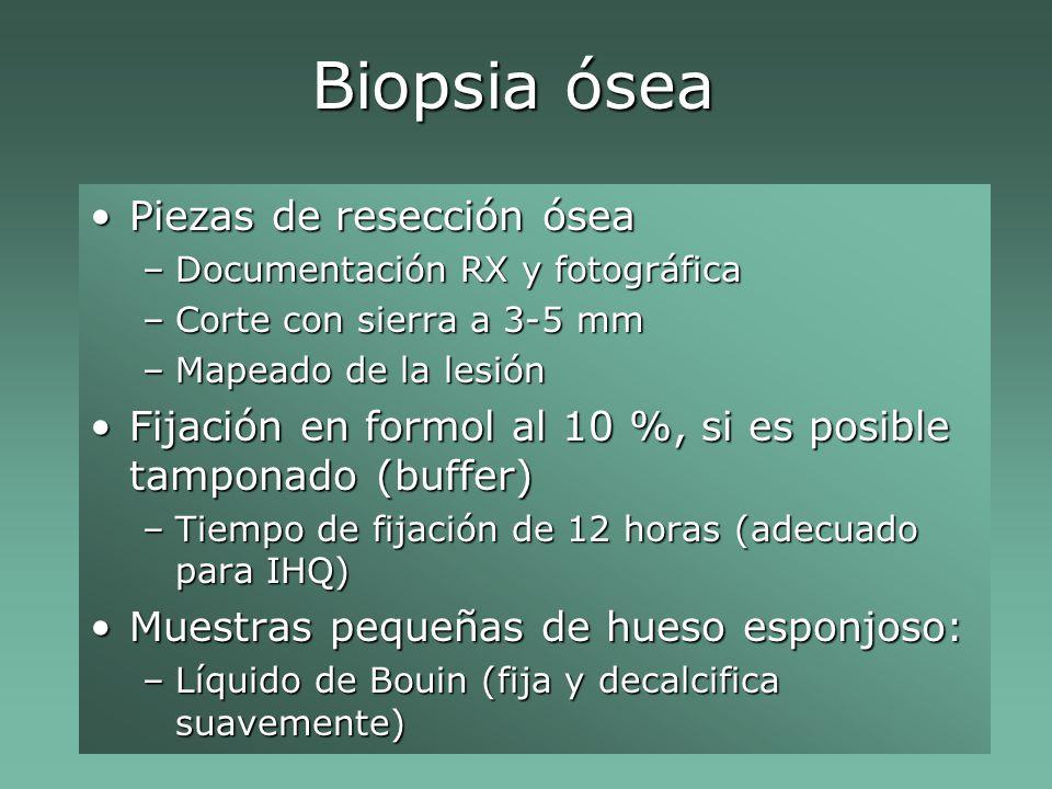 Biopsia ósea Piezas de resección ósea
