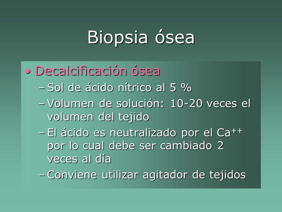 Biopsia ósea Decalcificación ósea Sol de ácido nítrico al 5 %