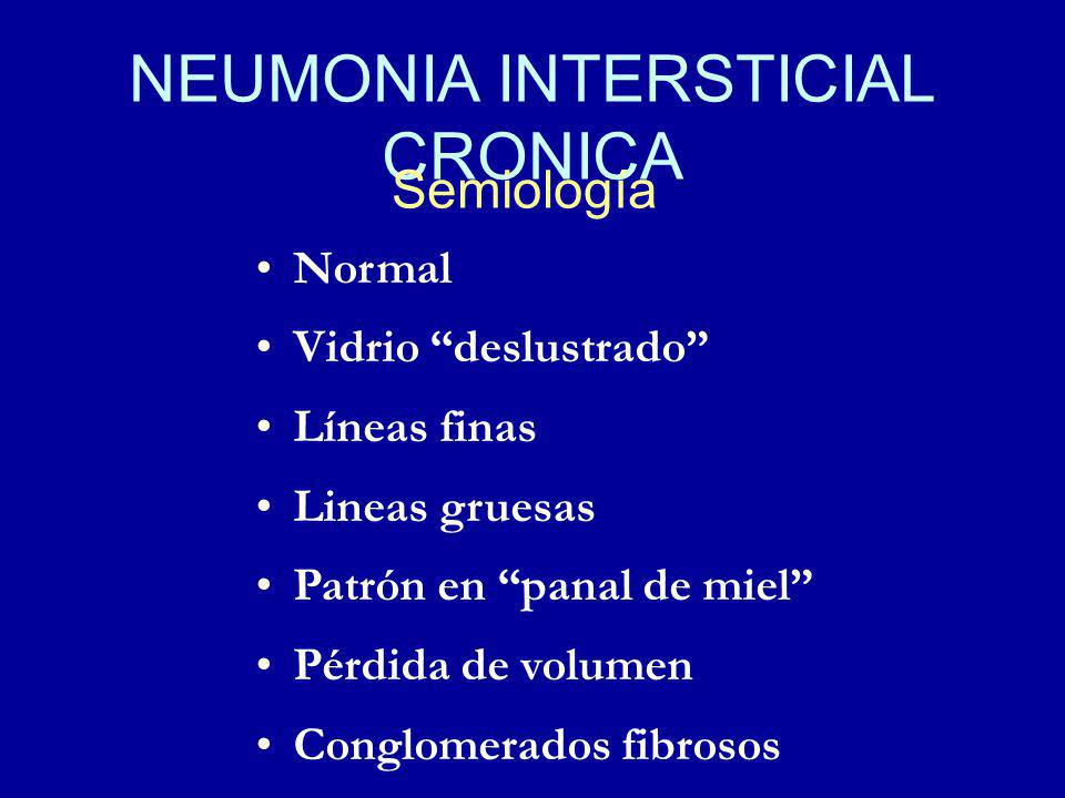 NEUMONIA INTERSTICIAL CRONICA