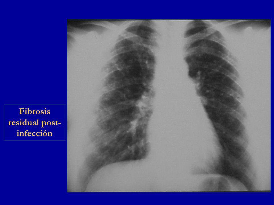 Fibrosis residual post-infección